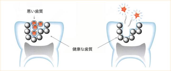 できるだけ削らない虫歯治療