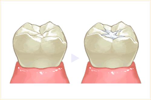 歯の溝を埋める シーラント