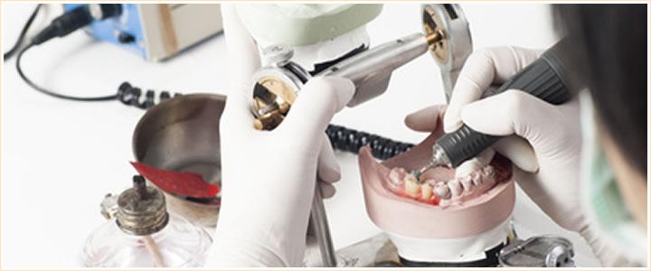 咬合や適合を重点においた審美歯科