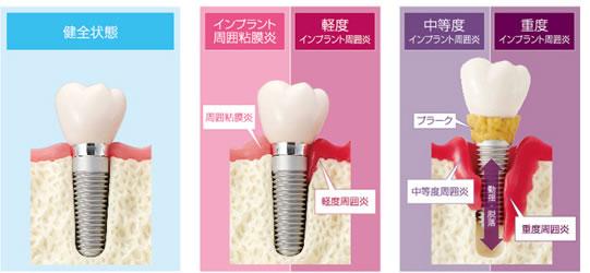 インプラント脱落と歯周病