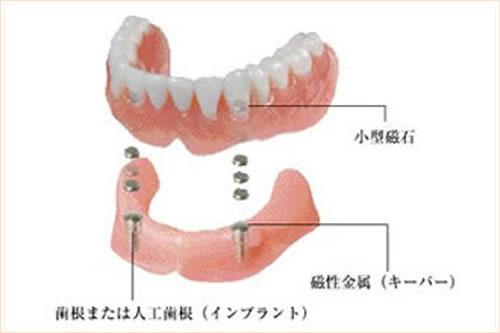 磁性マグネット義歯