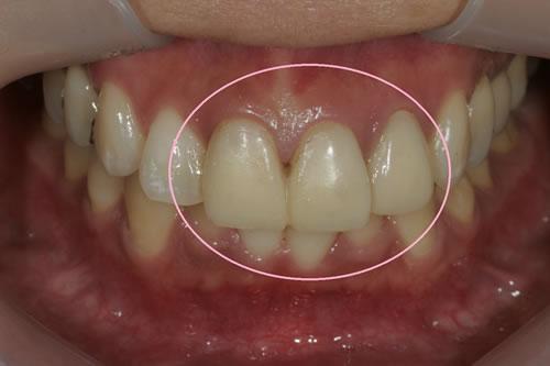 仮歯の精密に作成