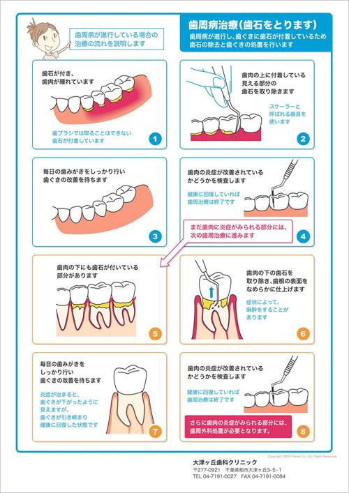 歯石とりの解説