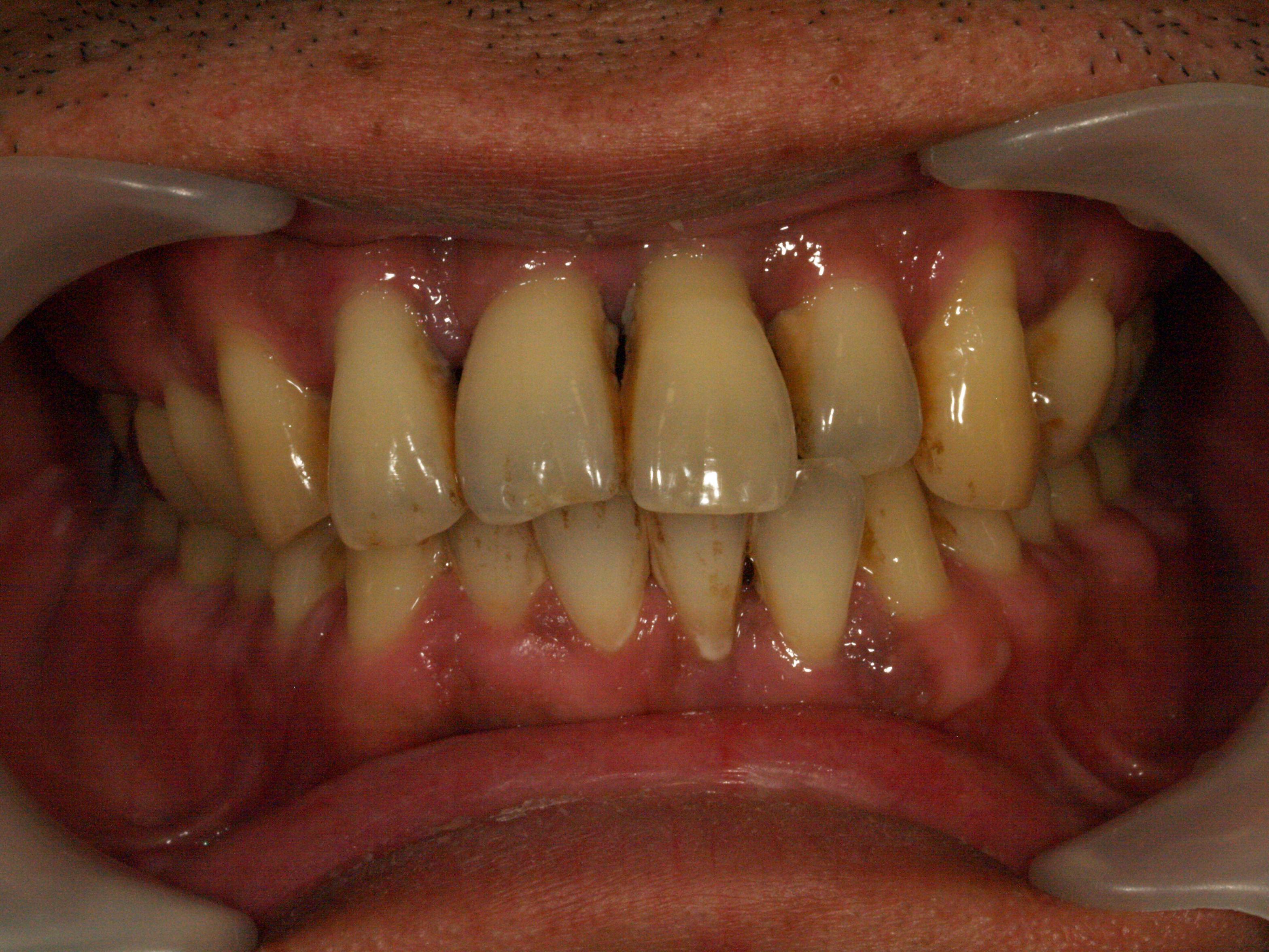 治療 歯 周 病