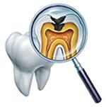 根管治療(歯の根の治療)